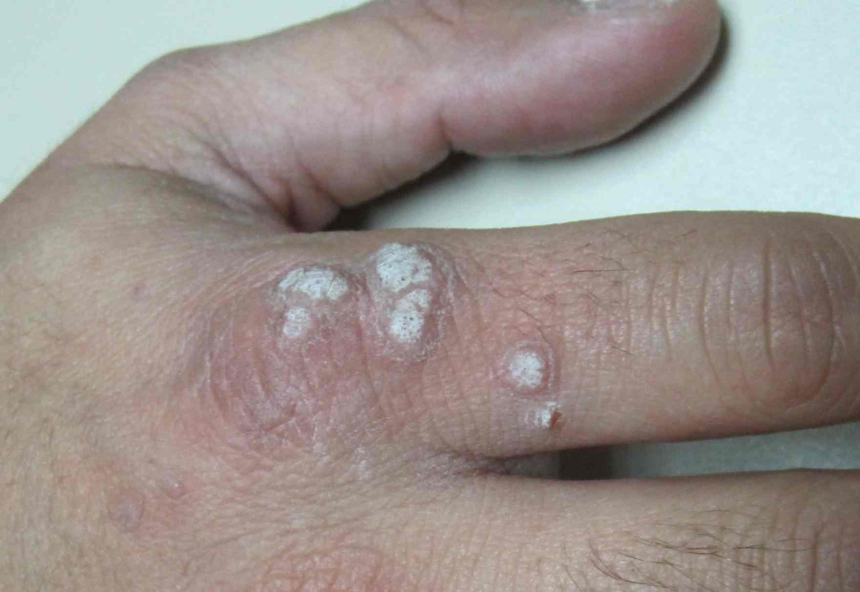 virus del papiloma en berrugas)