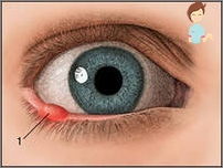 papilloma virus all occhio