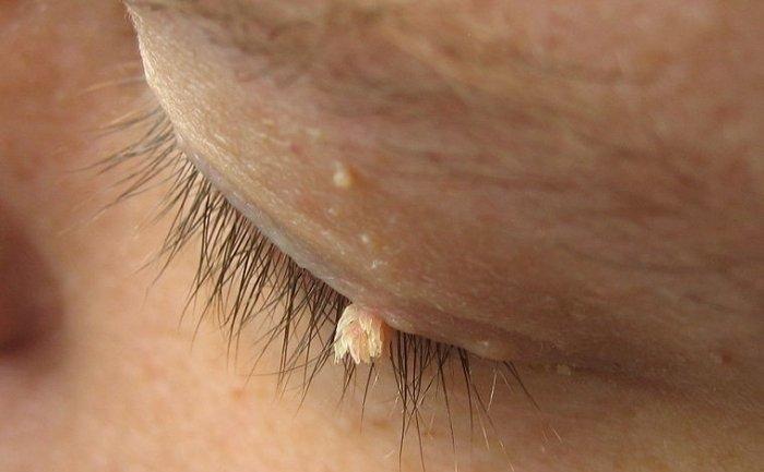 Cum să vindecați papilomele recenzii - Negii genitali: ce tratament aleg ca să nu reapară?