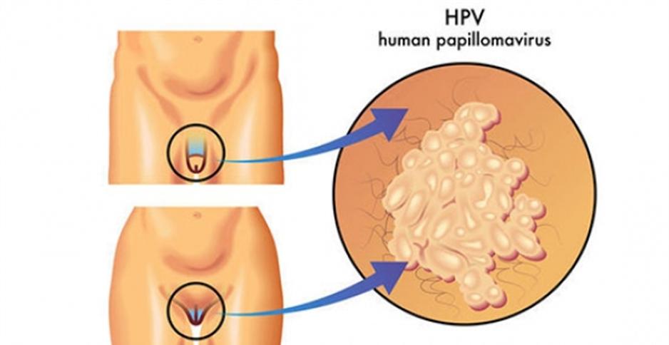 hpv or human papilloma virus)