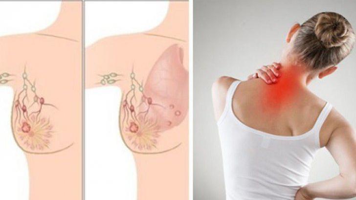 simptome cancer mamar inflamator