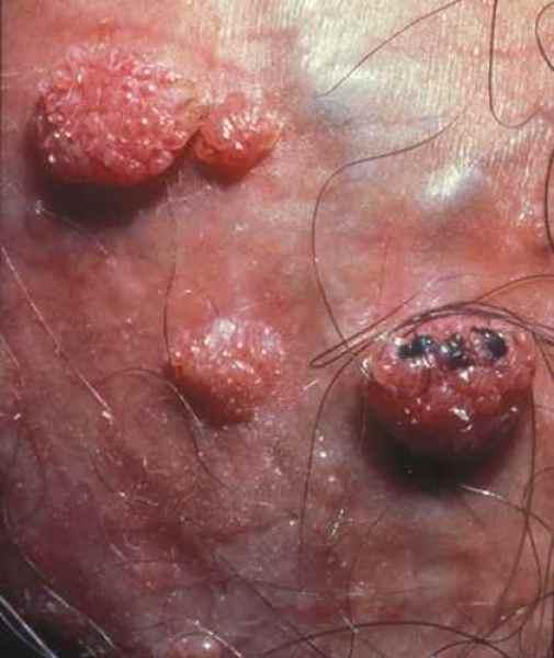 Bouton papillomavirus