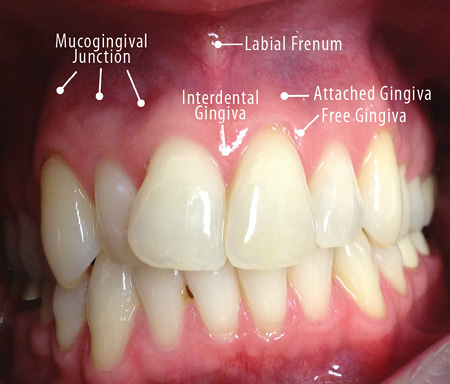gingival hpv treatment)