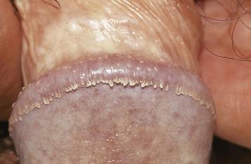 Condiloame ale organelor genitale externe - Tratamentul papilomilor - Allergodermatosis