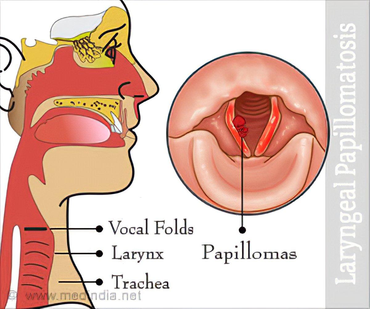 papilloma laryngeal cancer