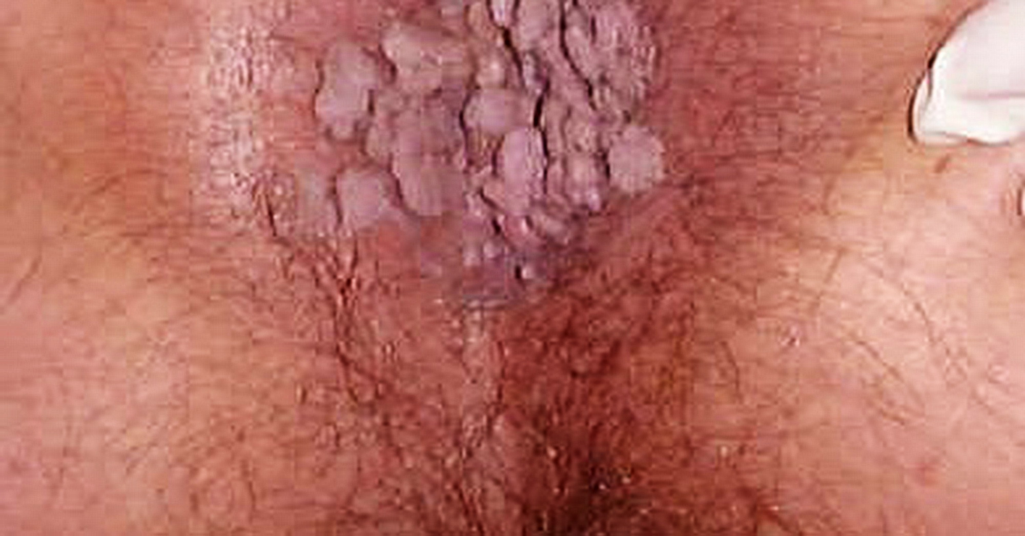 differenza tra papilloma e fibroma)