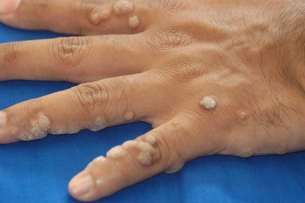 virusul papiloma uman la barbati