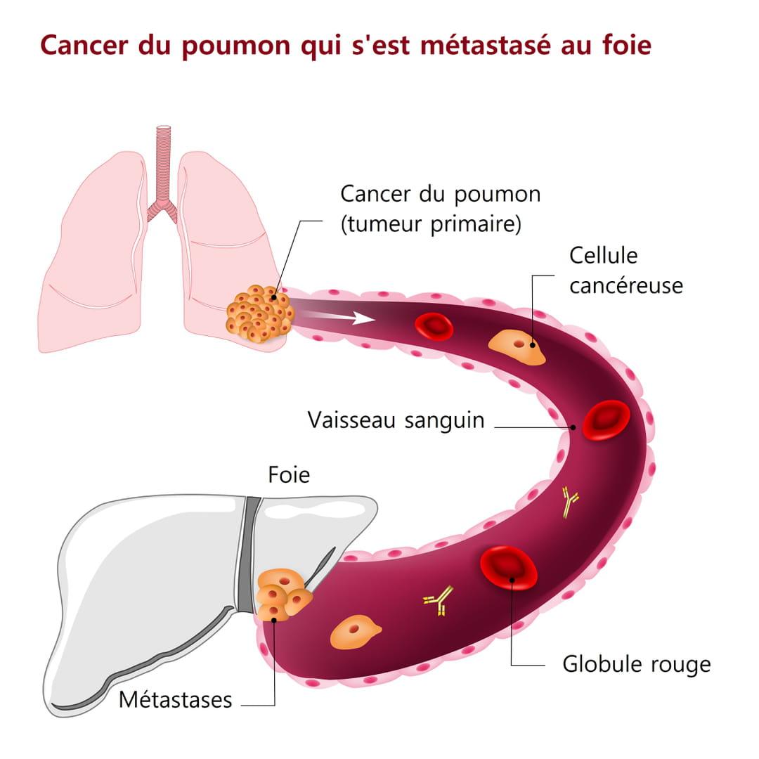 cancer colon stade 4)