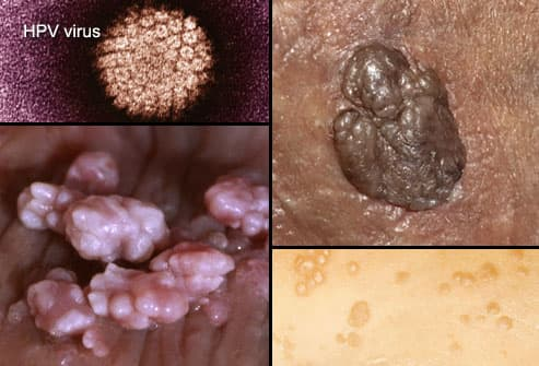 hpv and genital herpes the same)