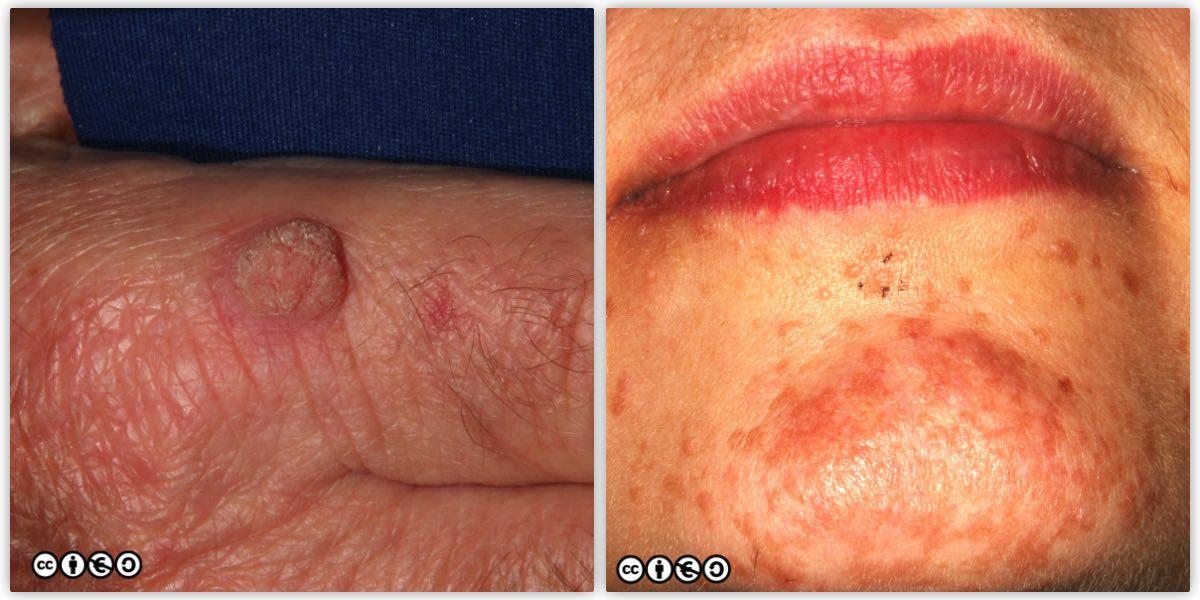 papilloma lesion skin