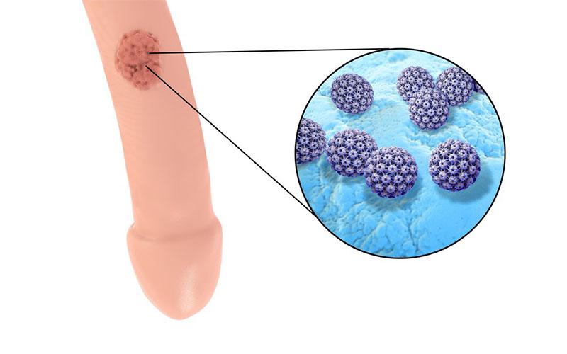virus hpv sintomi uomo