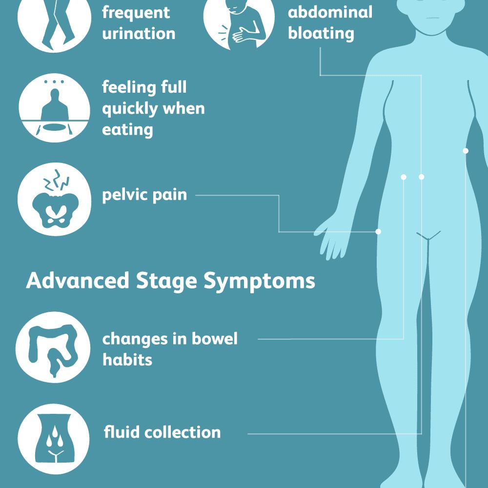 ovarian cancer abdominal bloating)