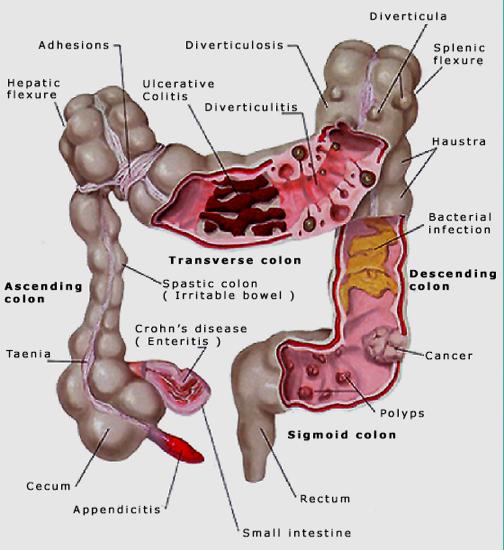 cancer abdominal adhesions