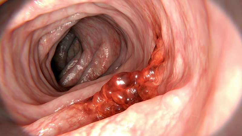 hpv colorectal cancer