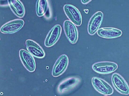 Cum să luați enterobioza, Medicina para oxiuros Enterobius vermicularis ova in stool