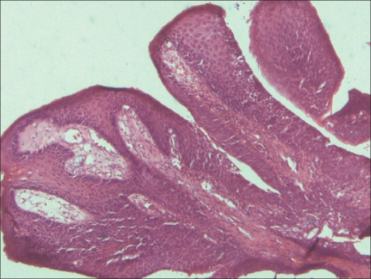 Conjunctival squamous papilloma