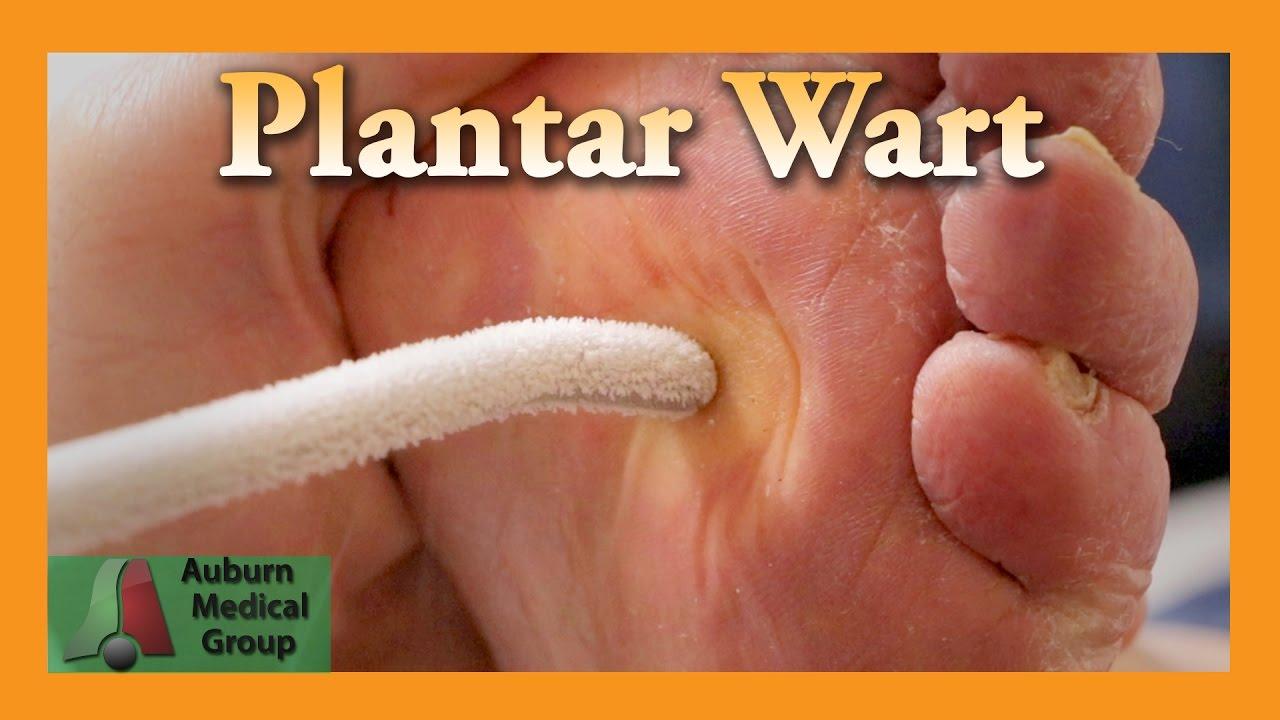 mâncărime în tratamentul viermilor din anus