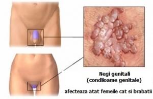 veruci genitale la deschiderea vaginului