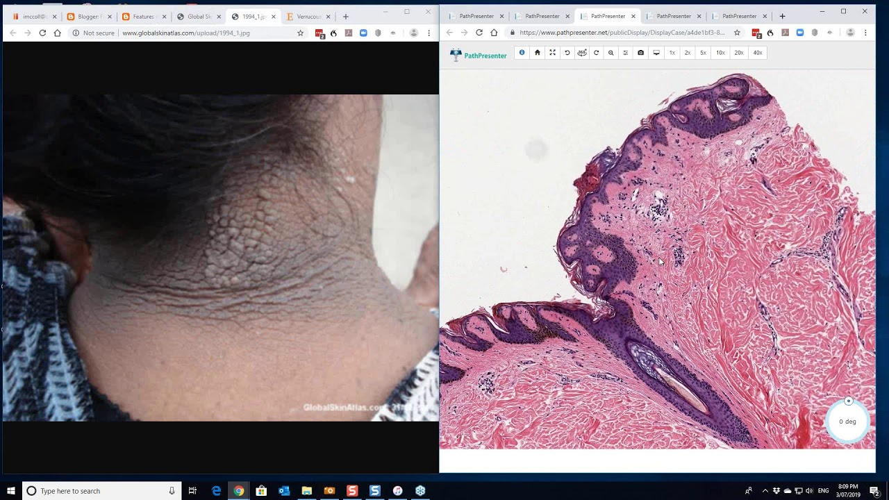 papillomatosis dermatopathology)