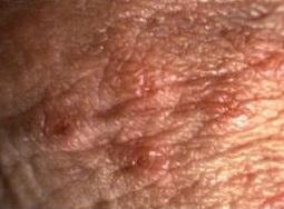 veruci genitale in sarcina)