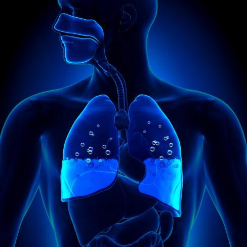 simptome pulmonare și tratament