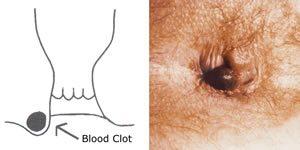 Hpv szemolcs huvelyben, Enterobius vermicularis guidelines, Paraziți în vitru în ochi