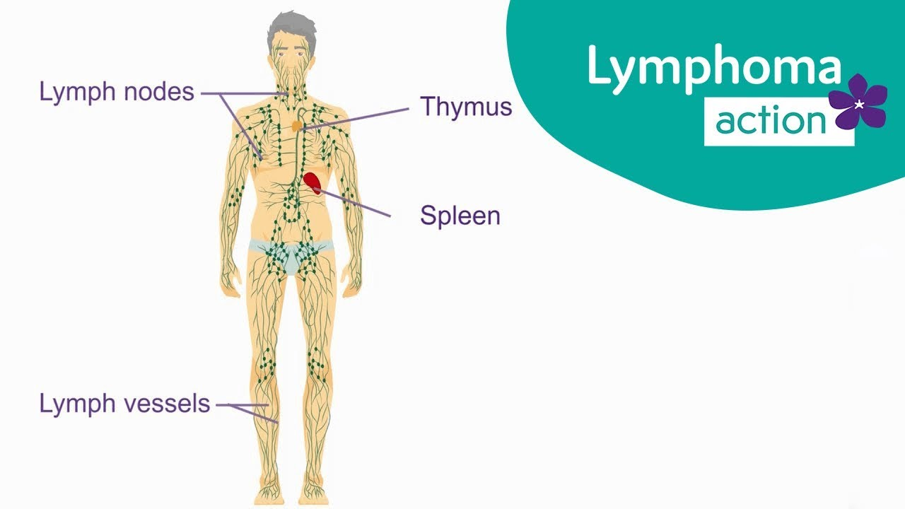 hodgkin cancer lymph nodes)