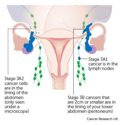 ovarian cancer in lymph nodes)