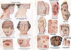 papilloma virusi hayeren