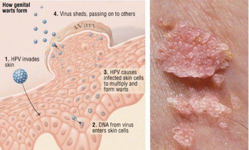 human papillomavirus in arabic)