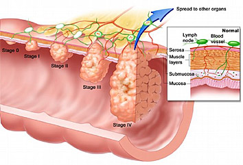 condyloma acuminatum description pancreatic cancer uk nhs