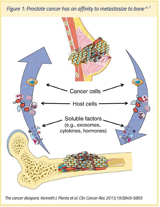 cancer metastatic in bones)