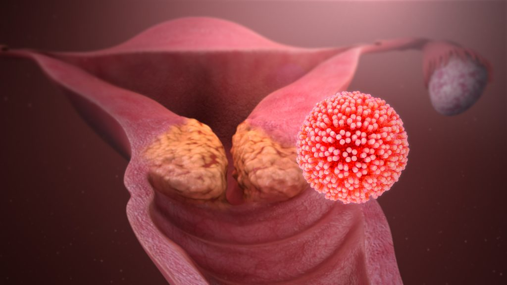 human papillomavirus infection types)