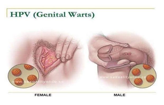 human papillomavirus anogenital warts)