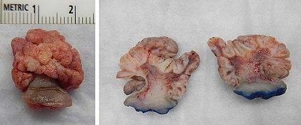 Squamous papilloma esophagus hpv