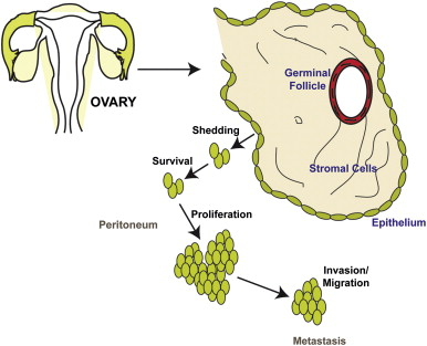 cancer epitelial ovarian)