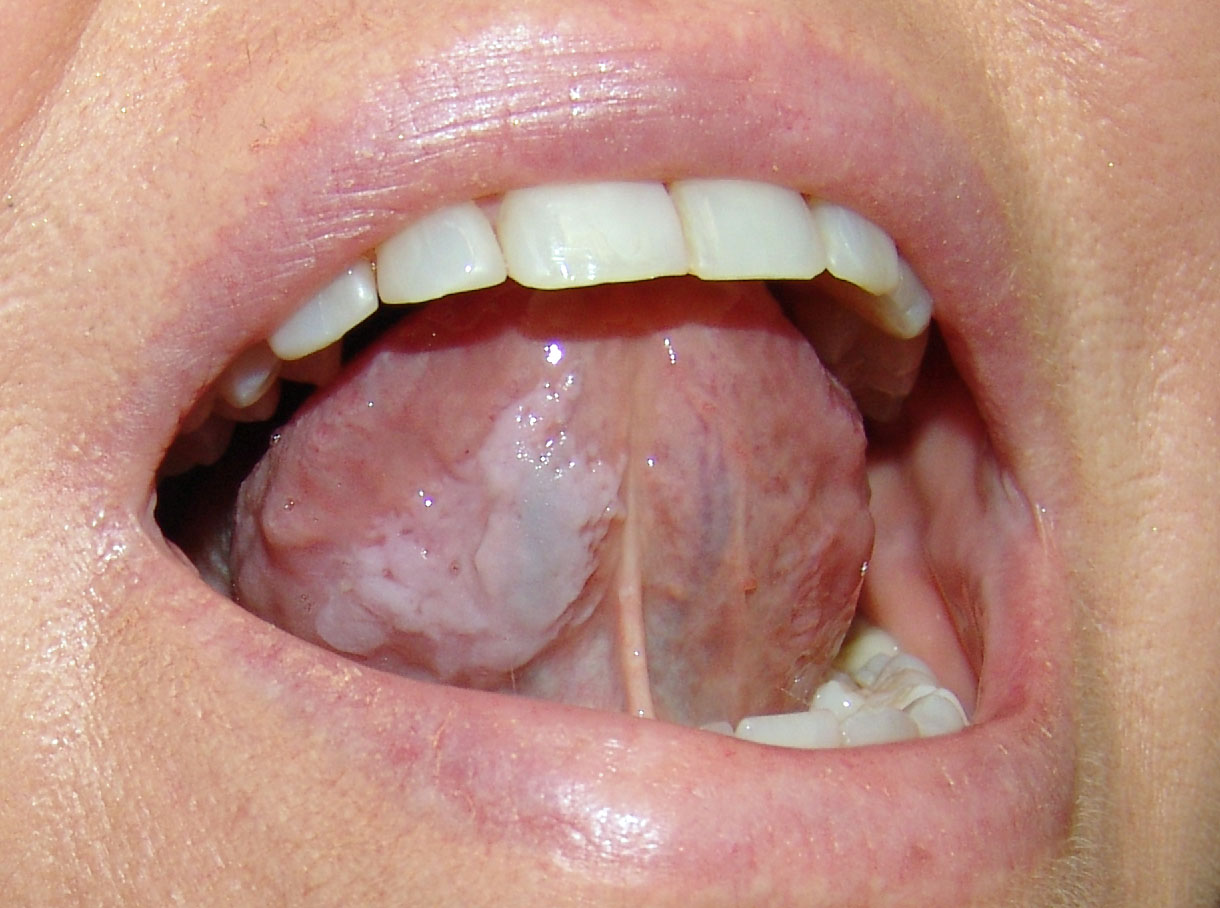 Papilloma virus sulla lingua