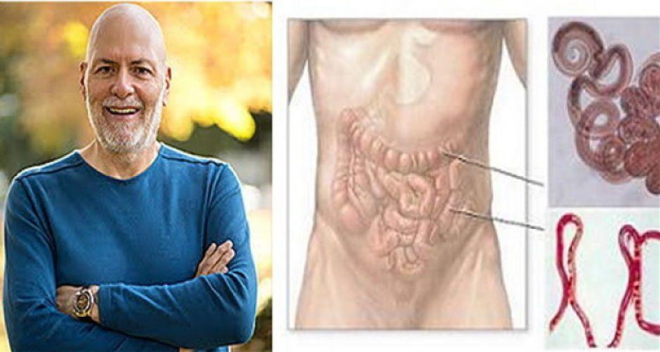 Viermi în cap cum să tratezi, Tratamente naturiste pentru paraziții și viermii intestinali