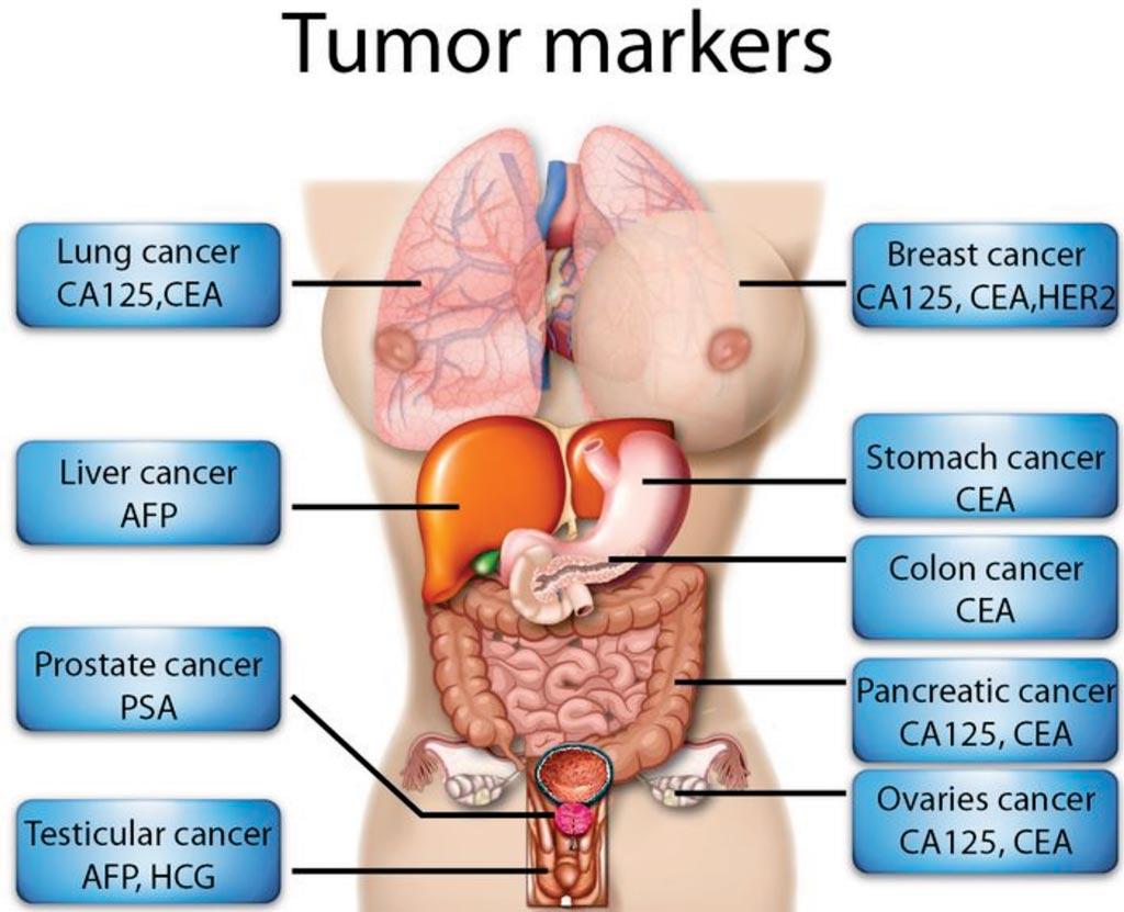 cancer colon marker