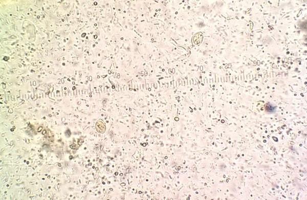 pasozyt giardia u psa peritoneal cancer male