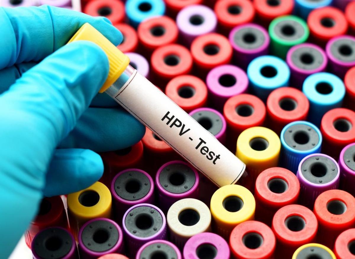 hpv virus frottis secretia din cancerul de endometru