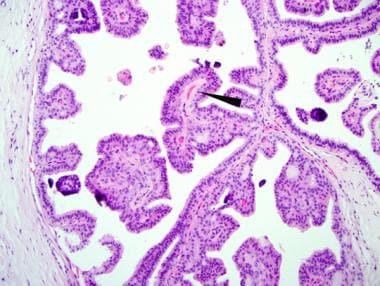 Intraductal papilloma breast pathology. Specificații Ductal papilloma histology