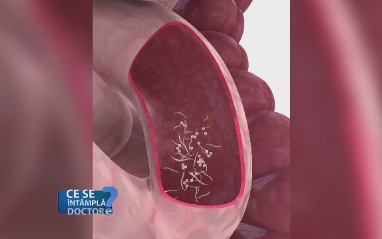 cum să scapi de viermi în corp