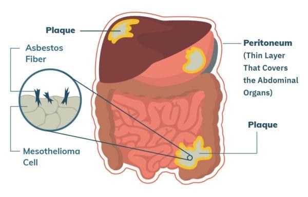 cancer peritoneal prognosis