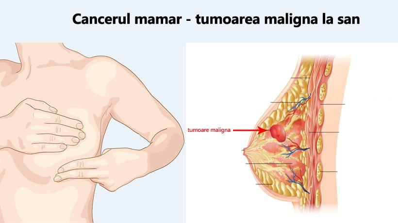 cancerul mamar simptome