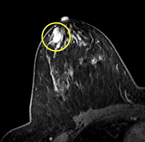 tumor papilloma intraductal)