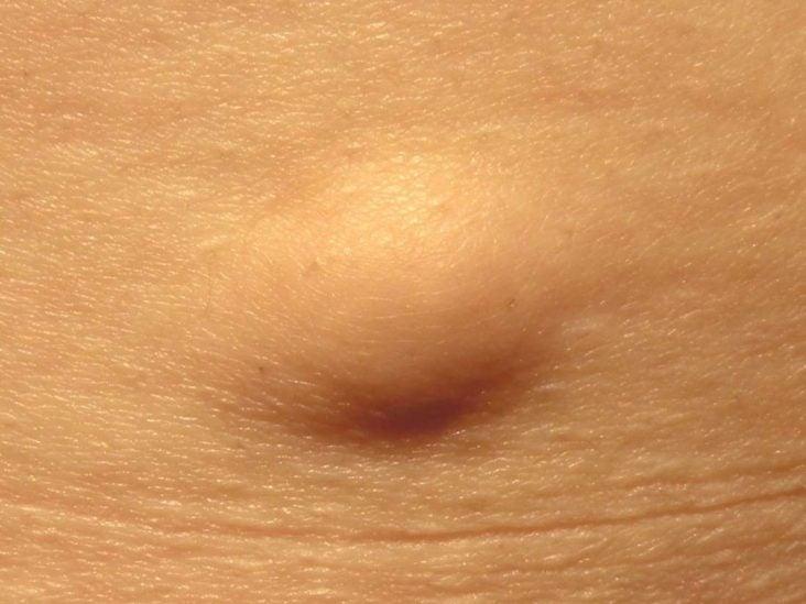 papilloma skin)