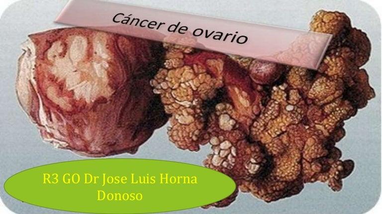 cancer ovario peritoneal