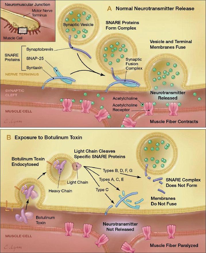 botuline toxine h