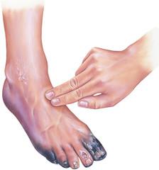 crește între tratamentul degetelor de la picioare)